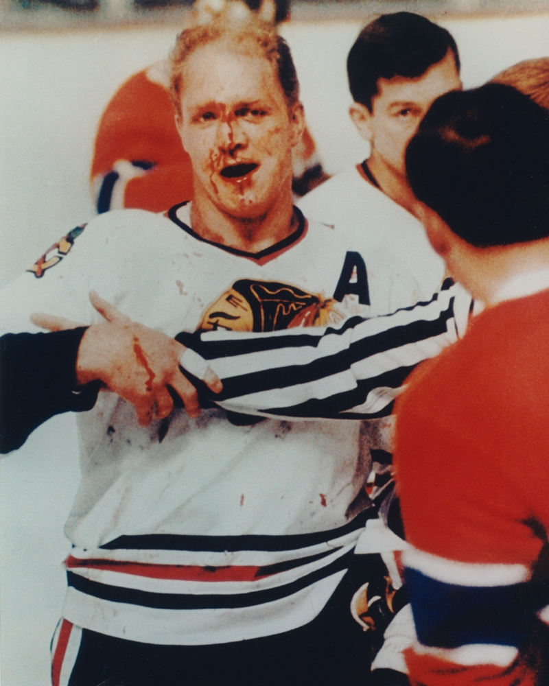 Bobby Hull Bloody Face Vintage Chicago Blackhwaks